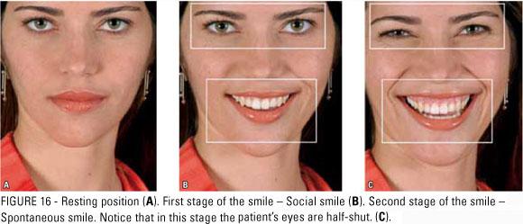 Smile progression